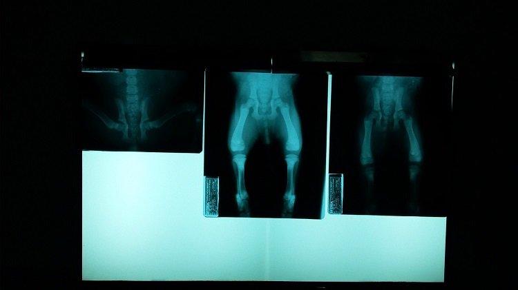 Przerzuty nowotworowe w kościach się leczy?